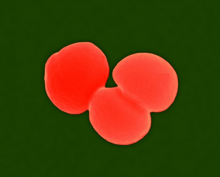 Staphylococcus aureus, SEM LANG_EVOIMAGES