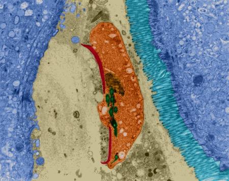 protozoan: Protozoan intestine infection (Giardia sp.), TEM
