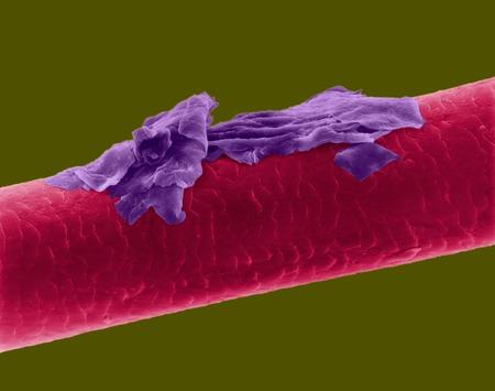 Human hair with dandruff, SEM