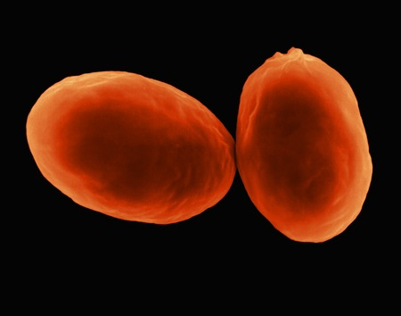 protozoan: Giardia lamblia protozoan, SEM LANG_EVOIMAGES