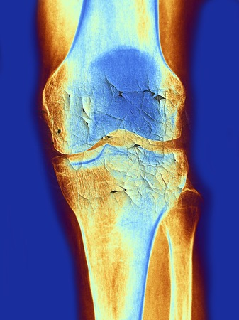 Knee joint, x-ray, artwork LANG_EVOIMAGES