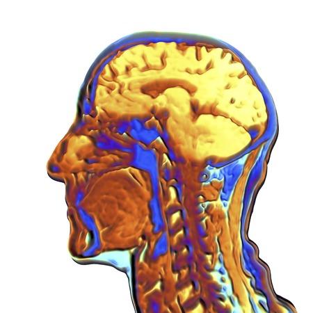 resonancia magnética: Imagen de resonancia magnética colorimétrica de la cabeza humana