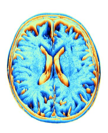 axial: MRI Brain scan, heightmap LANG_EVOIMAGES