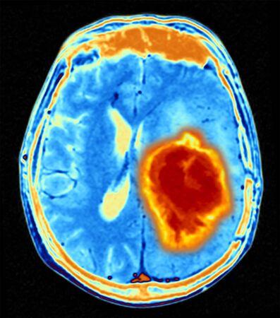 resonancia magnética: Tumor cerebral LANG_EVOIMAGES