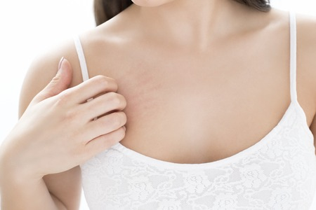 Woman scratching chest