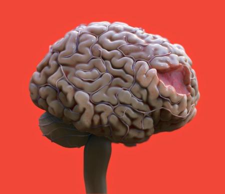 Brain damage, illustration LANG_EVOIMAGES