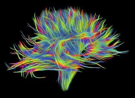White matter fibres of the human brain, DSI scan