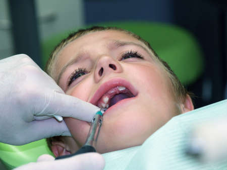 Little boy under dental treatment