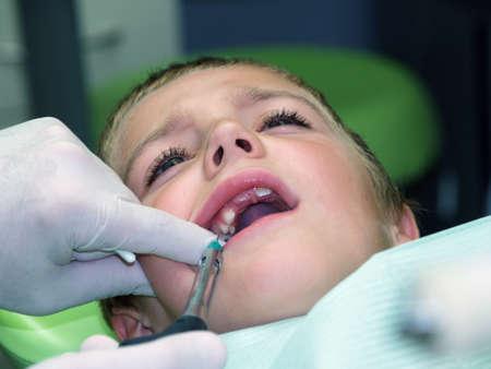 mouth pain: Little boy under dental treatment