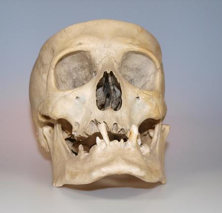 Real human skull used like teaching material photo