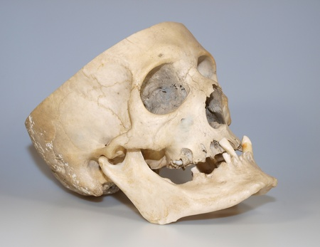 teaching material: Real human skull used like teaching material