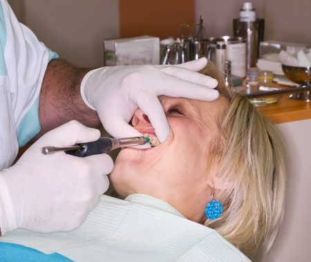 dental prophylaxis: Mature lady receive local anesthesia