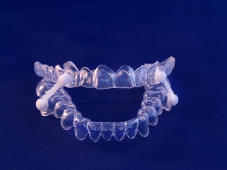 Appliance for management of jaws during obstructive sleep apnea Standard-Bild