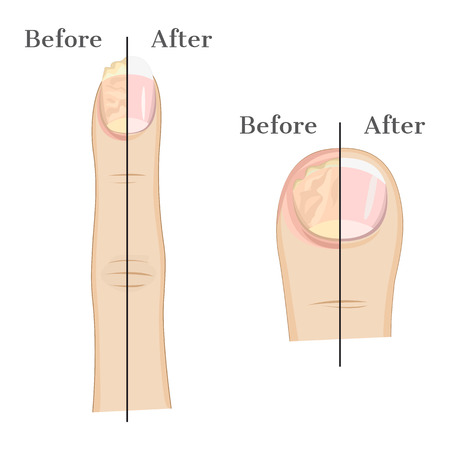 fungal: Fungal infection of the nails Illustration Before and After