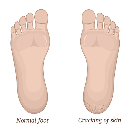 harass: Illustration of healthy feet and feet with cracks on the heel