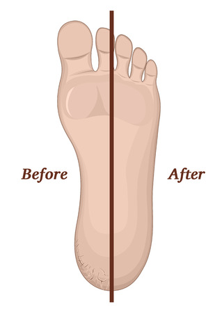 regeneration: Illustration legs with cracks on the skin before and after treatment Illustration