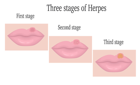 simplex: The three stages of herpes simplex virus on the lips Illustration