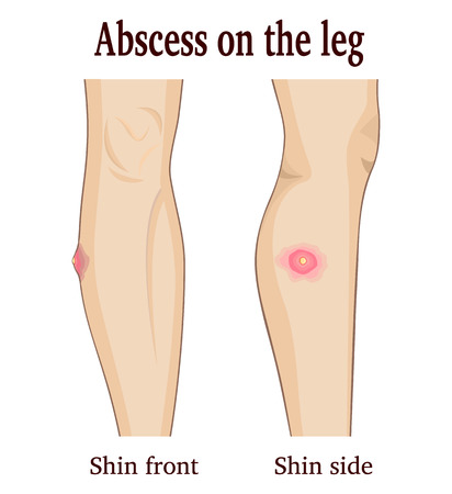 swelling: Image abscess on the leg from two perspectives