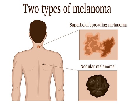 superficial: Two types of skin melanoma on the neck and back of a man