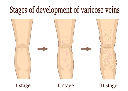 Three stages of the development of varicose veins isolated on white background