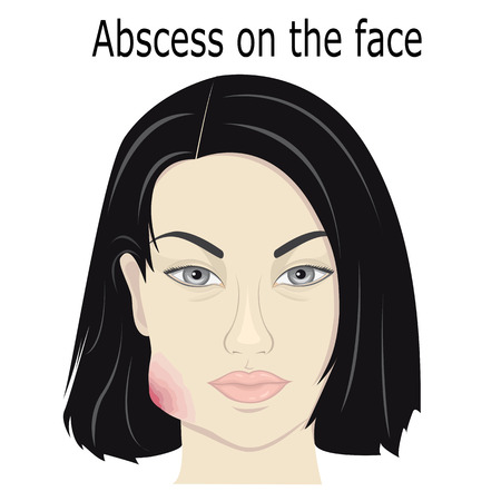 swelling: Illustration abscess on the face of a young girl Illustration