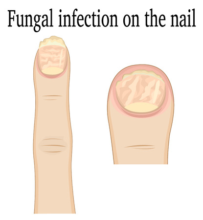 infection: Fungal infection on the fingers of the feet and hands