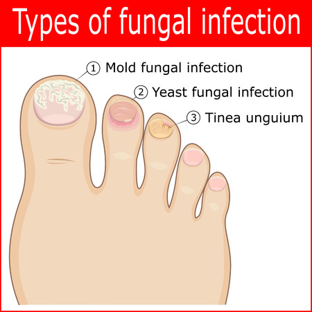 toes: Types of fungal infections in the nails of the toes Illustration