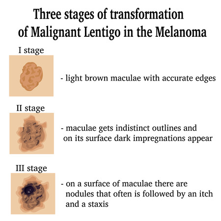 malignant growth: Three stages of transformation of Malignant Lentigo in the Melanoma