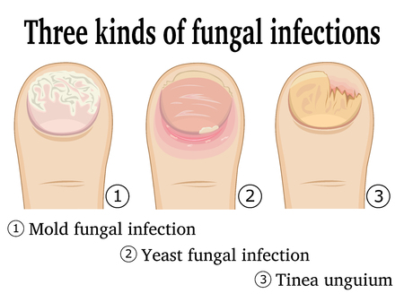 fungal: Three types of fungal infection on the toe. Illustration
