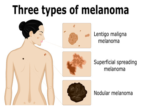 superficial: Three types of melanoma that for example located on the back and face of the woman