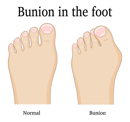 flatfoot: Comparison of a healthy foot and foot with hallux valgus deformity (Bunion).