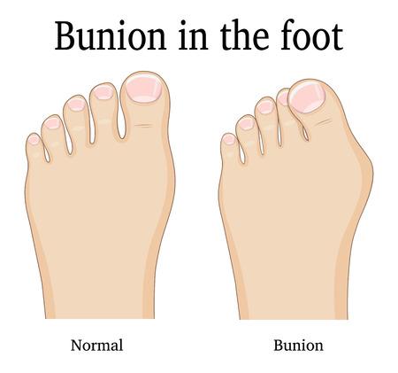 Comparison of a healthy foot and foot with hallux valgus deformity (Bunion).