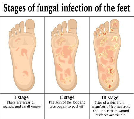 malady: Three stages of fungal infection of the feet Illustration