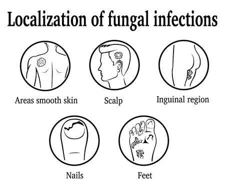 The localization of fungal infections: nails, feet, inguinal region, scalp, areas smooth skin.