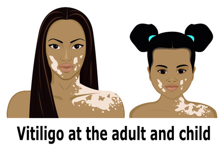 aching: Vitiligo at the woman and the little girl
