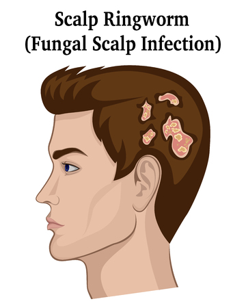 A young man with symptoms of a fungal infection of the scalp (ringworm)
