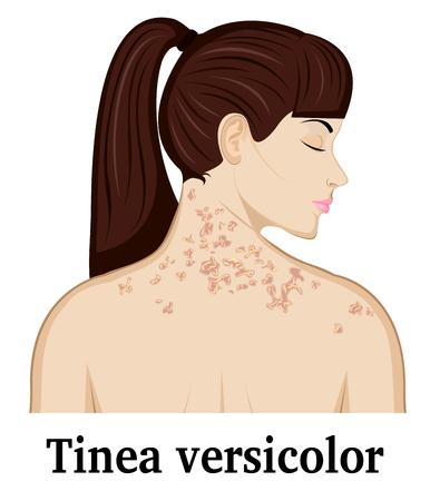Tinea versicolor auf Nacken und Schultern eines jungen Mädchens Standard-Bild - 76872005