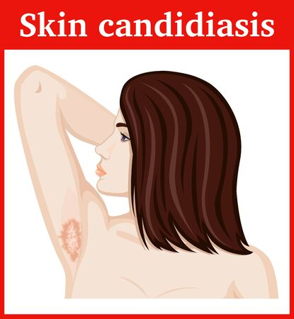 armpits: Girl with symptoms of skin candidiasis in the armpits