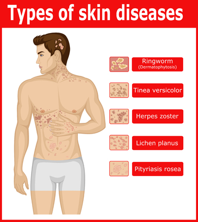 Types of skin diseases on the body of a young man
