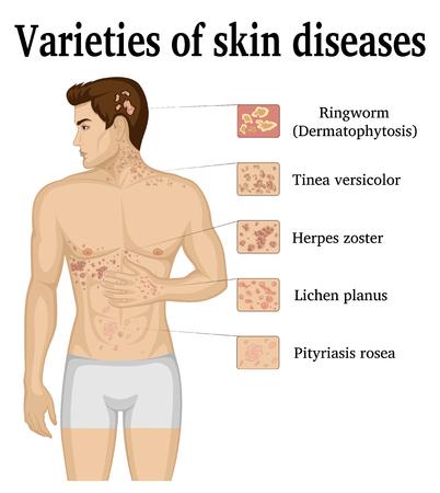 Varietà di malattie della pelle sul corpo di un giovane