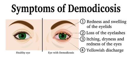 Ogen van een jonge vrouw met symptomen van demodicose
