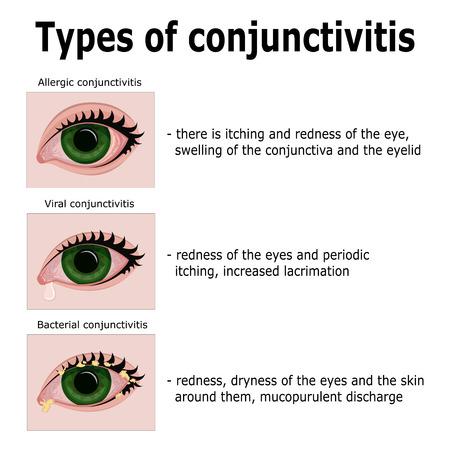 Drie hoofdvormen van conjunctivitis: allergisch, viraal en bacterieel