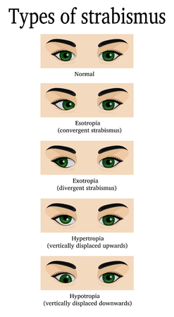 Four types of strabismus: esotropia, exotropia, hydrotropia and hypertropia