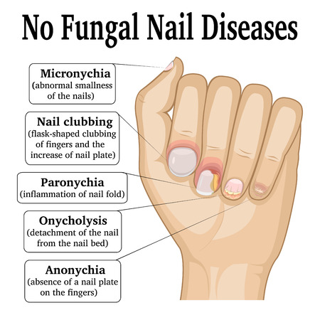 Illustration of five different non fungal nail diseases Ilustrace