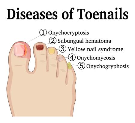 Illustratie van vijf verschillende nagelaandoeningen op de teennagels, zoals Onychocryptosis, Onychomycosis, Onychogryphosis, Subungual hematoom en Yellow nails-syndroom