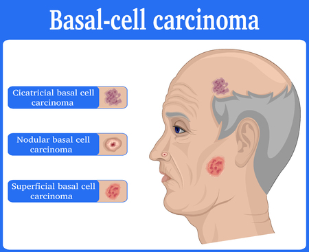 Three types of basal cell carcinoma on the face of elderly man. Ilustrace