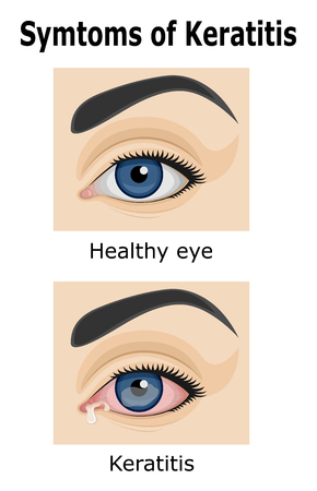 Illustratie van het oog met symptomen van Keratitis