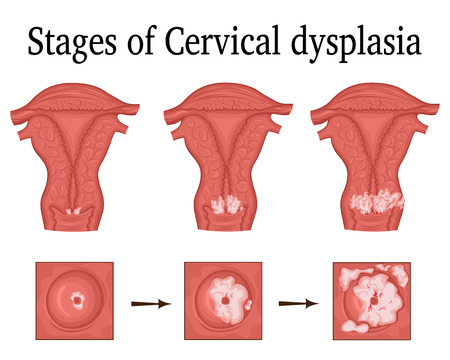 The three stages of cervical dysplasia - a potential premalignant condition. Illustration