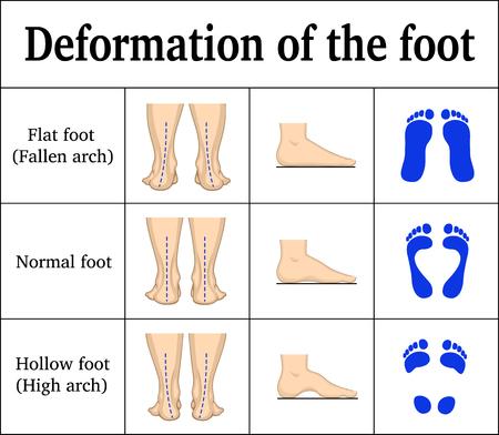 Illustratie van de vervorming van de voet. Stock Illustratie