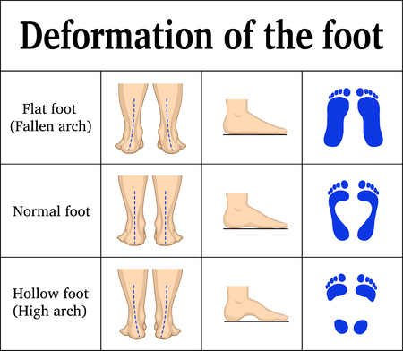Ilustracja deformacji stopy.